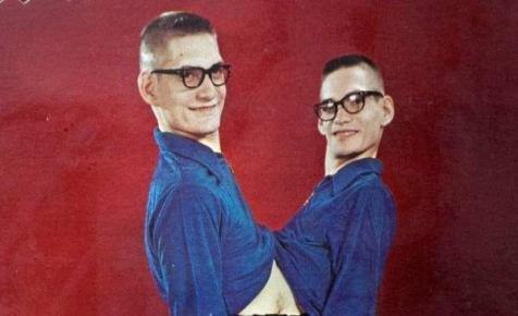 Elhunyt Ronnie és Donnie, a leghosszabb életű sziámi ikerpár